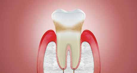 Stop Receding Gums from Getting Worse
