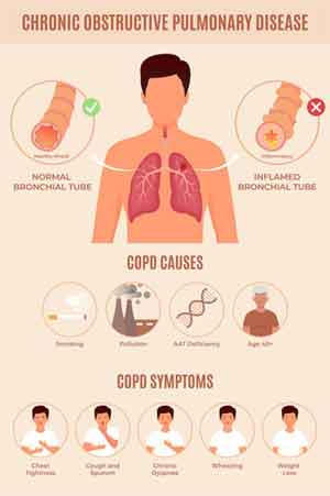 Another Name for COPD