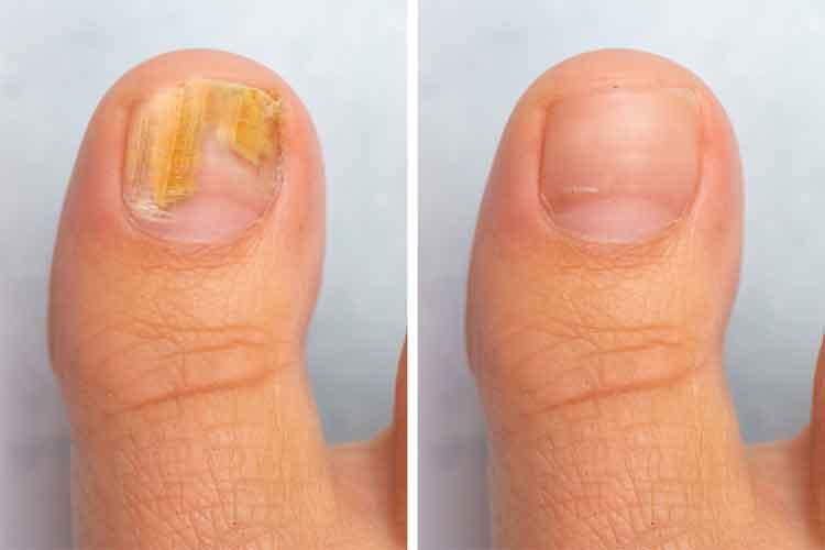 Tips for Treating Nail Fungus