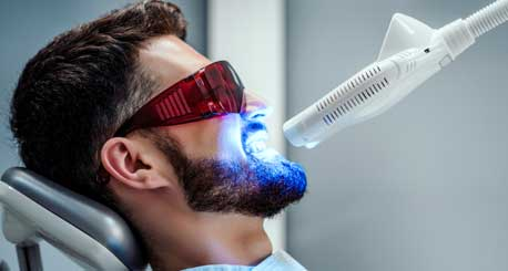 What Is The Cost Of Laser Teeth Whitening