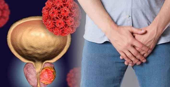 Estrogen and Inflammation in Prostate Cancer